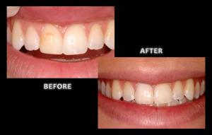 Veneers - Omaha Cosmetic Dentist - Dr. Zuerlein