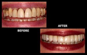 cosmetic dentistry omaha nebraska dr. brian zuerlein veneers