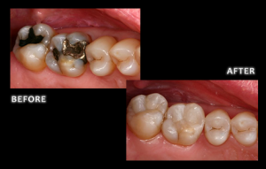 Composite Fillings - Dr. Brian Zuerlein, Omaha Cosmetic Dentist