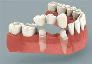 Bridges - Omaha Cosmetic Dentistry, Restorative Dentistry, Full Mouth Rehabilitation - Dr. Brian W. Zuerlein - Omaha, Nebraska