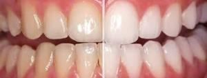 teeth bleaching results - Omaha Cosmetic Dentist - Dr. Brian Zuerlein