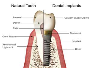 Dental Implants - Cosmetic Dentistry, Restorative Dentistry, Full Mouth Rehabilitation - Dr. Brian W. Zuerlein - Omaha, Nebraska