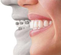 Invisalign Clear Aligner, Clear Braces - Cosmetic Dentistry - Dr. Brian W. Zuerlein - Omaha, Nebraska