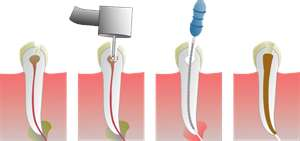 Root Canal Therapy - Omaha Cosmetic Dentistry - Dr. Brian W. Zuerlein - Omaha, Nebraska