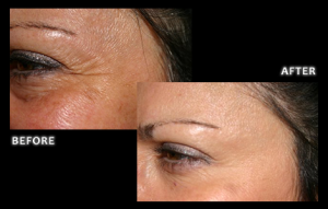 Botox Aesthetic and Therapeutic Services - Cosmetic Dentistry - Dr. Brian Z Dental