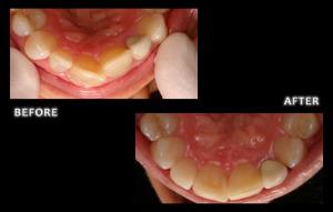 Inman Aligner - Omaha Cosmetic Dentist - Dr. Zuerlein