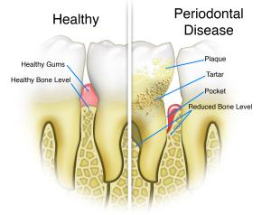 Periodontal-Disease dr. zuerlein cosmetic dentist omaha