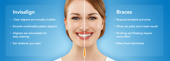 Invisalign Difference Vs Regular Braces - Dr. Brian Zuerlein Omaha Cosmetic Dentist