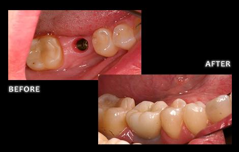 Zuerlein Dental, Omaha Cosmetic Dentist, Implant For Missing Molar