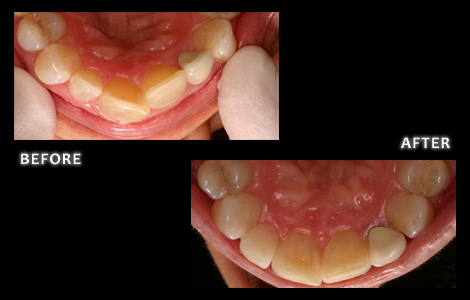 Zuerlein Dental, Cosmetic Dentistry, Inman Aligners