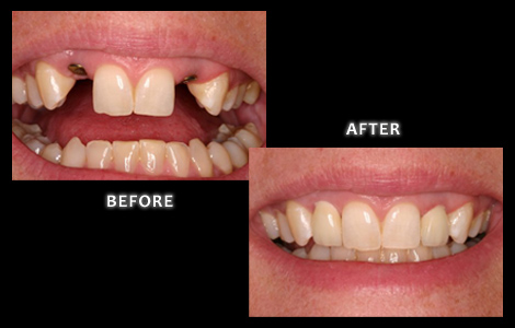 Zuerlein Dental, Implant Dentistry, Missing Lateral Incisors Replaced With Implants