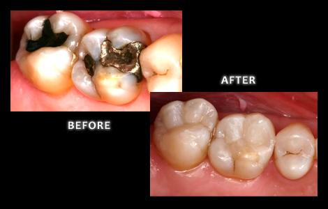Zuerlein Dental, Omaha Cosmetic Dentist, Teeth Restored With Bonded Composite Fillings