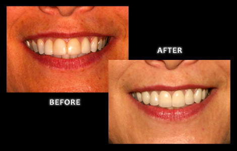 Zuerlein Dental, Omaha Cosmetic Dentist, Porcelain Crowns Replaced With Ceramic Crowns