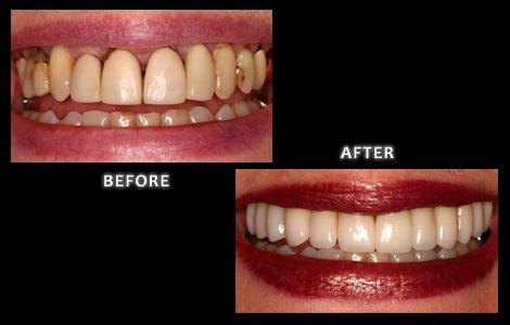 Zuerlein Omaha Cosmetic Dentist, Veneers Before and After