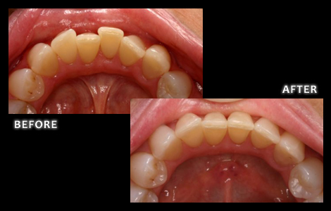 Cosmetic Dentistry Overcrowding of Lower Teeth Corrected With Inman Aligner - Zuerlein Dental