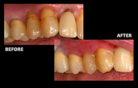 Upper Right Gum Recession Corrected With Surgery Free Pinhole Technique - Dr. Brian Zuerlein DDS