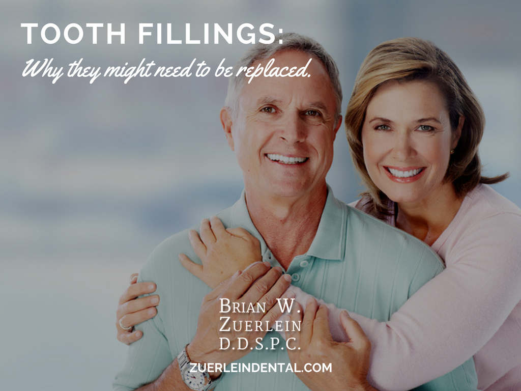 Replacing Fillings - Brian Zuerlein DDS - Omaha Cosmetic Dentist