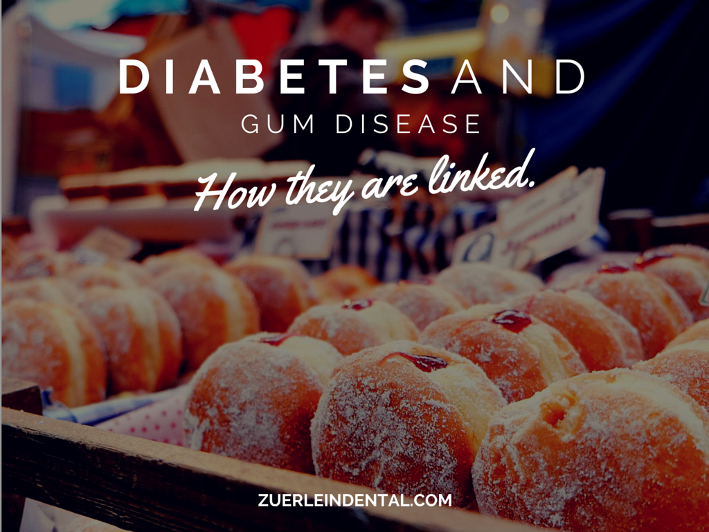Diabetes and Gum Disease - Brian Zuerlein DDS