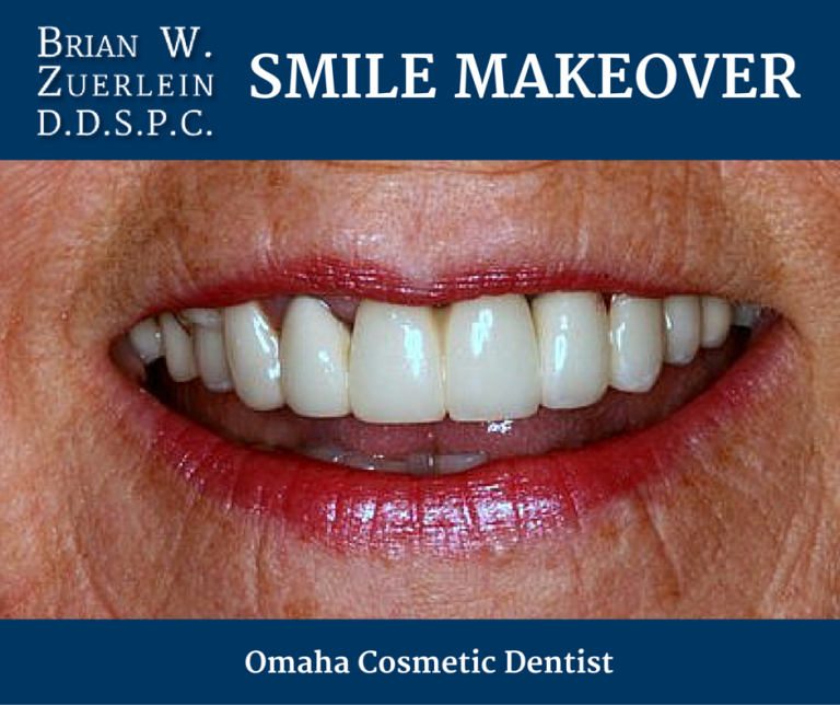 Omaha Cosmetic Dentist, Brian Zuerlein - Smile Makeover, Crowns, Bridges
