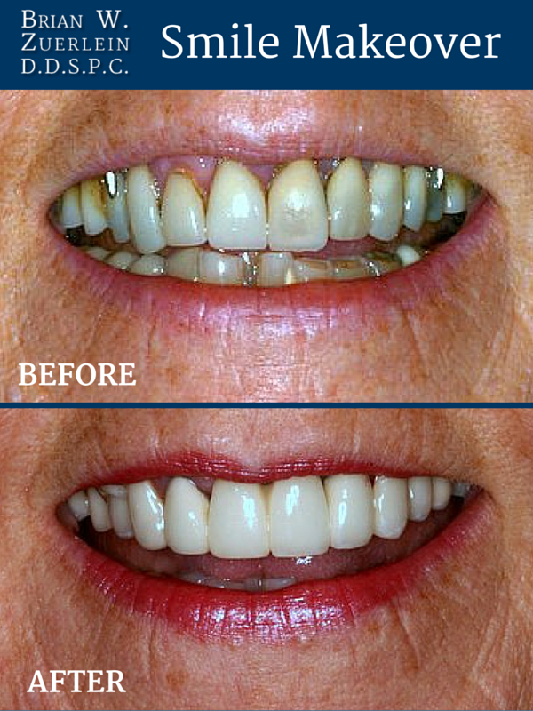 Omaha Cosmetic Dentist - Brian Zuerlein - Smile Makeover - Crowns and Bridges