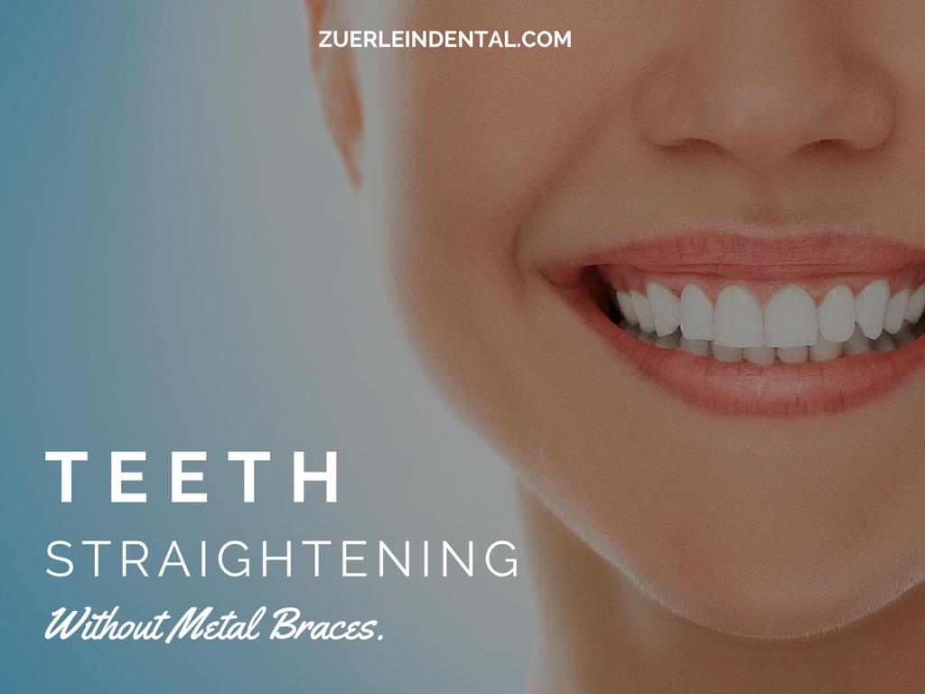 Teeth Straightening - Brian Zuerlein DDS - Omaha Cosmetic Dentist